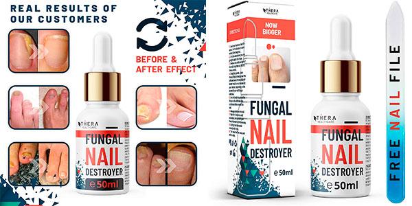 Chollo Tratamiento de hongos para las uñas Fungal Nail Destroyer de 50 ml